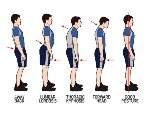 How To Fix Your Posture - 3 Easy Steps!